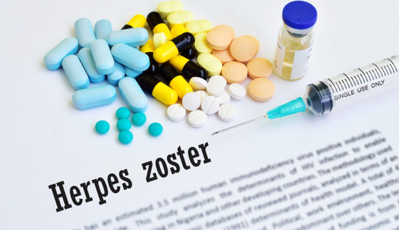 herpes zoster ictus