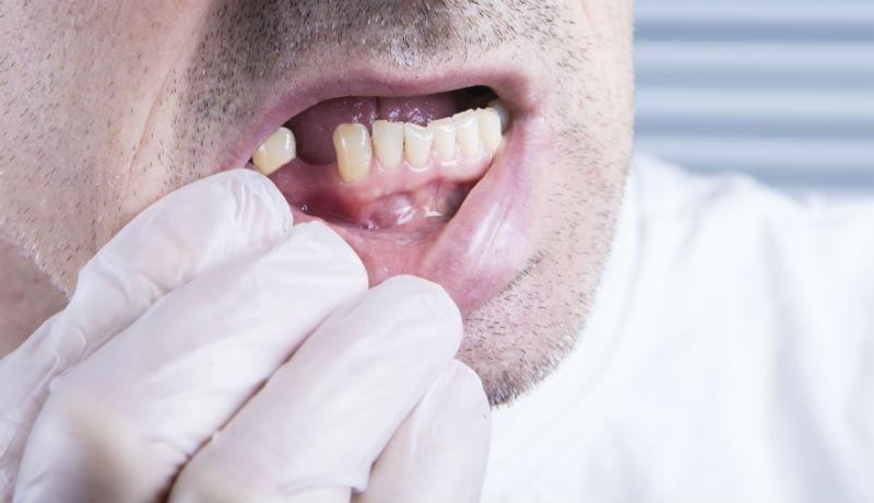 Covid 19 e caduta dei denti: esiste una relazione diretta?